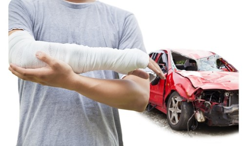 bodily-injury-liability
